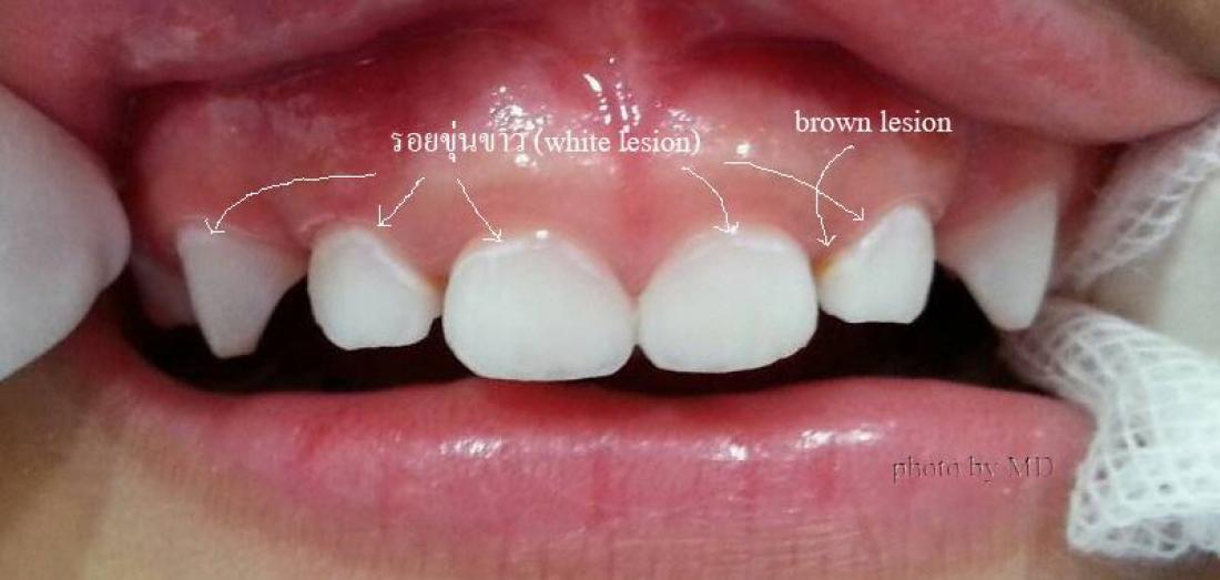บทความเรื่อง ด้วยสองมือพ่อแม่ สามารถหยุดฟันผุระยะเริ่มต้นนี้ได้